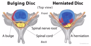 Symptoms and causes of the bulging disc